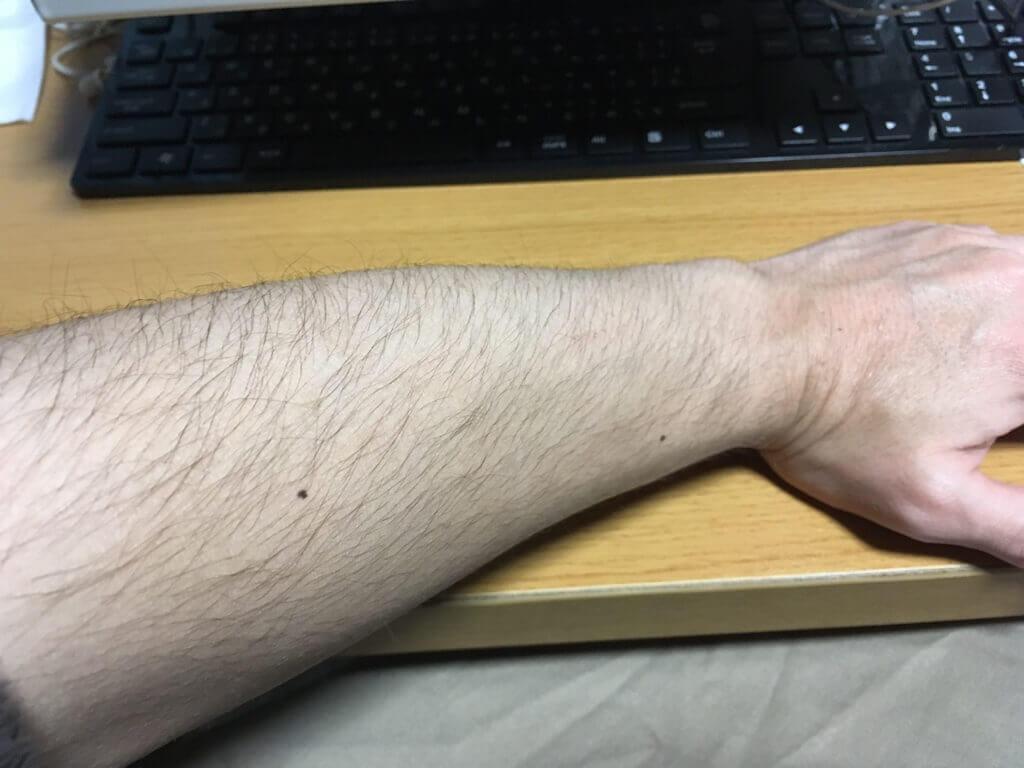 検証1ヶ月【腕毛】