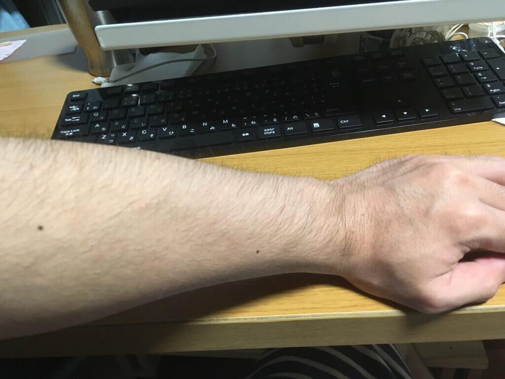 検証2ヶ月【腕毛】