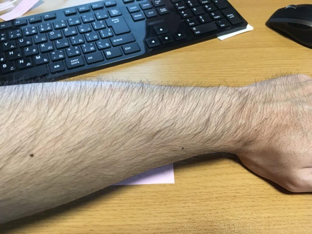 検証3ヶ月【腕毛】