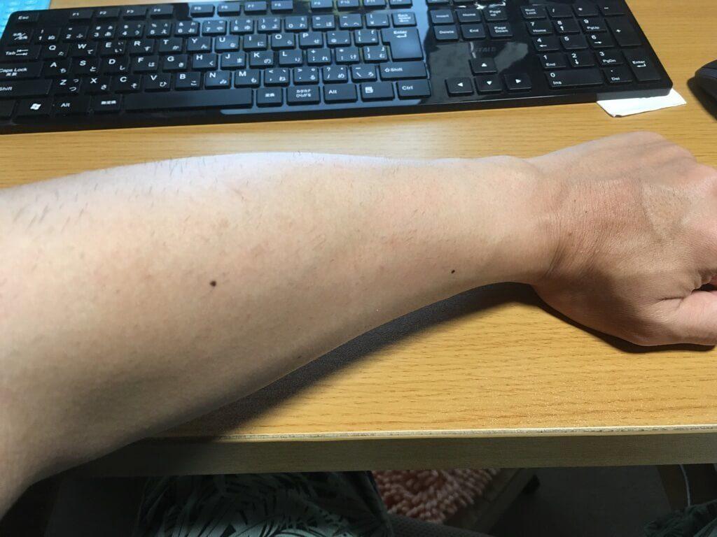 検証5ヶ月【腕毛】