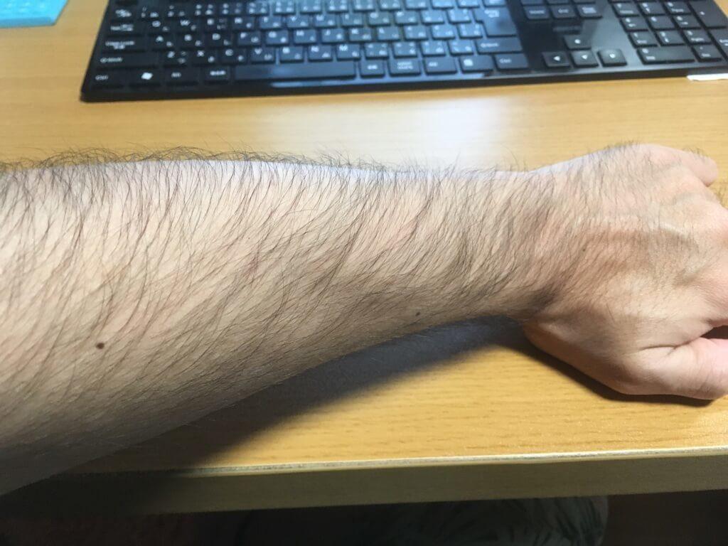 検証4ヶ月【腕毛】
