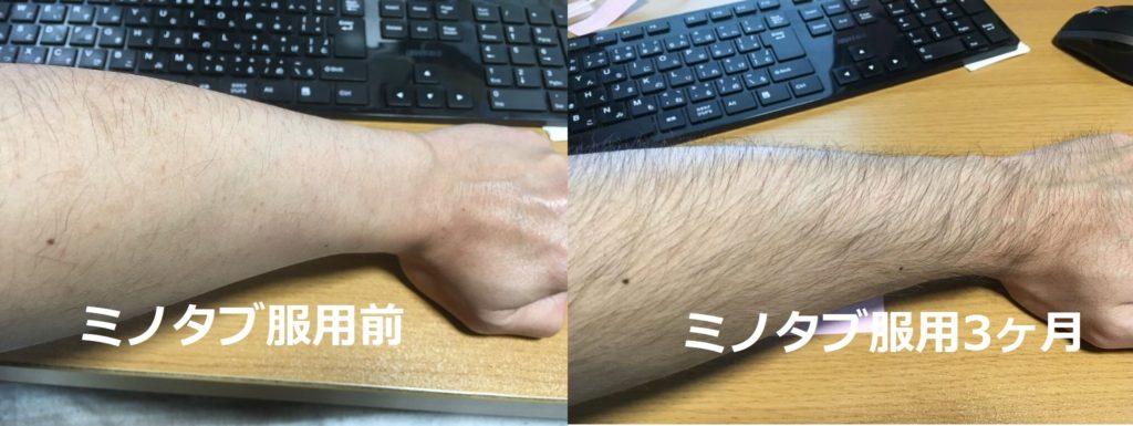 ミノタブ(服用前と3ヶ月後を比較)