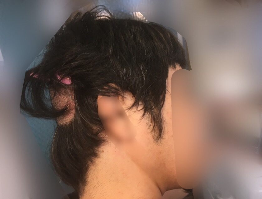 ルーチェクリニック植毛後2日目の後頭部刈り上げの様子