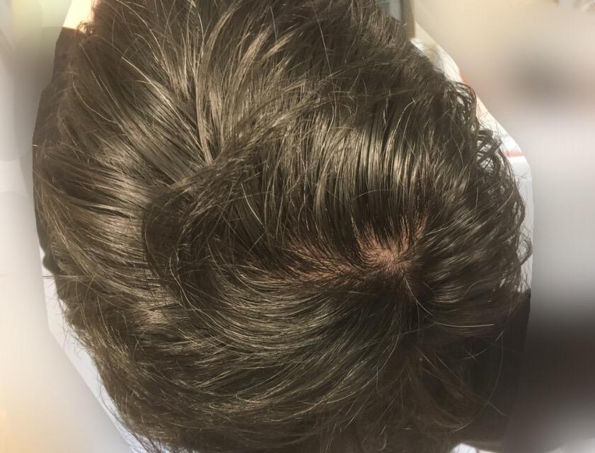 ルーチェクリニック植毛後2日目のドナー採取後頭頂部