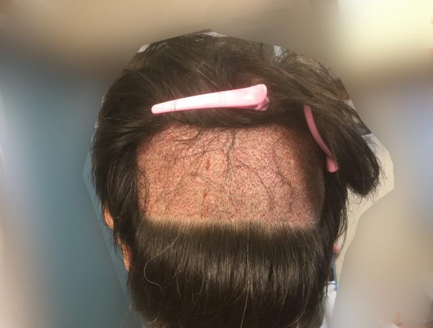 ルーチェクリニック植毛後2日目のドナー採取部後頭部