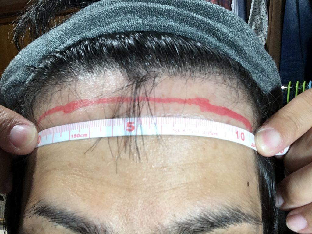 前頭部植毛部分