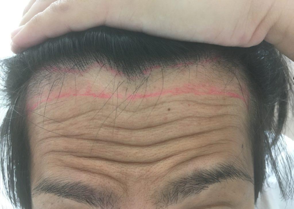 生え際前頭部のヘアデザイン(しわ寄せ)