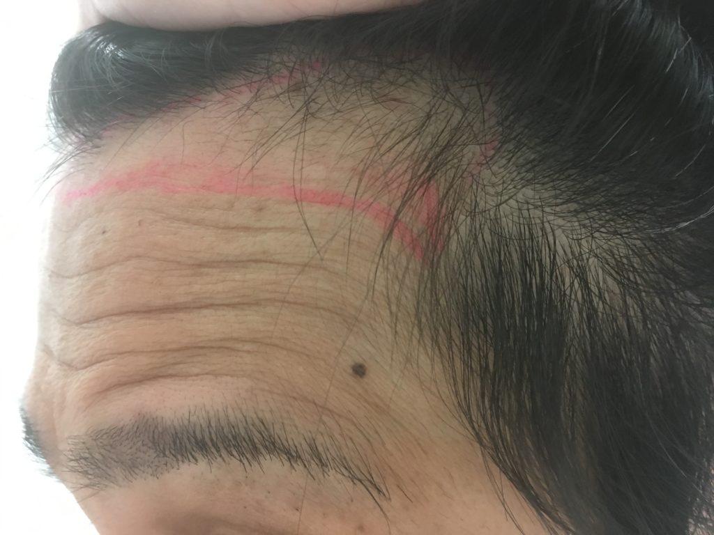 左M字のヘアデザイン(しわ寄せ)