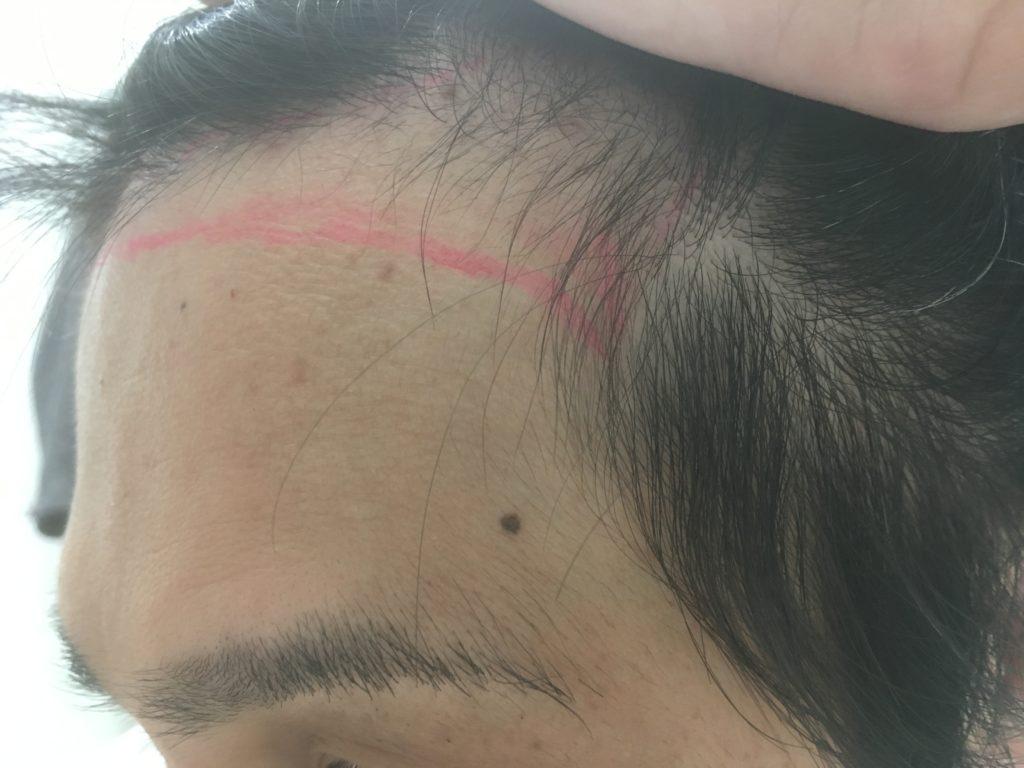 左M字のヘアデザイン