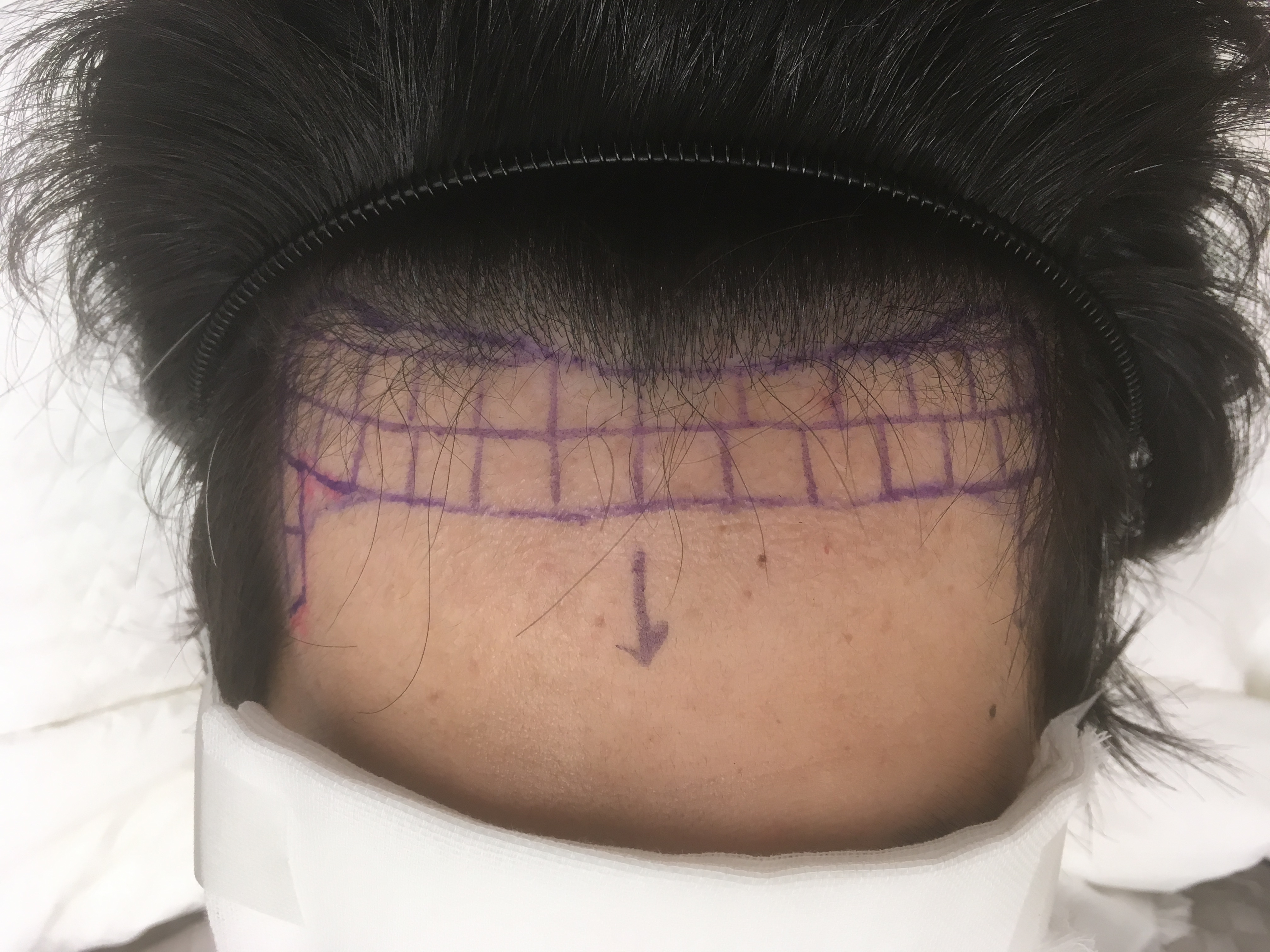 自毛植毛前のヘアデザイン正面