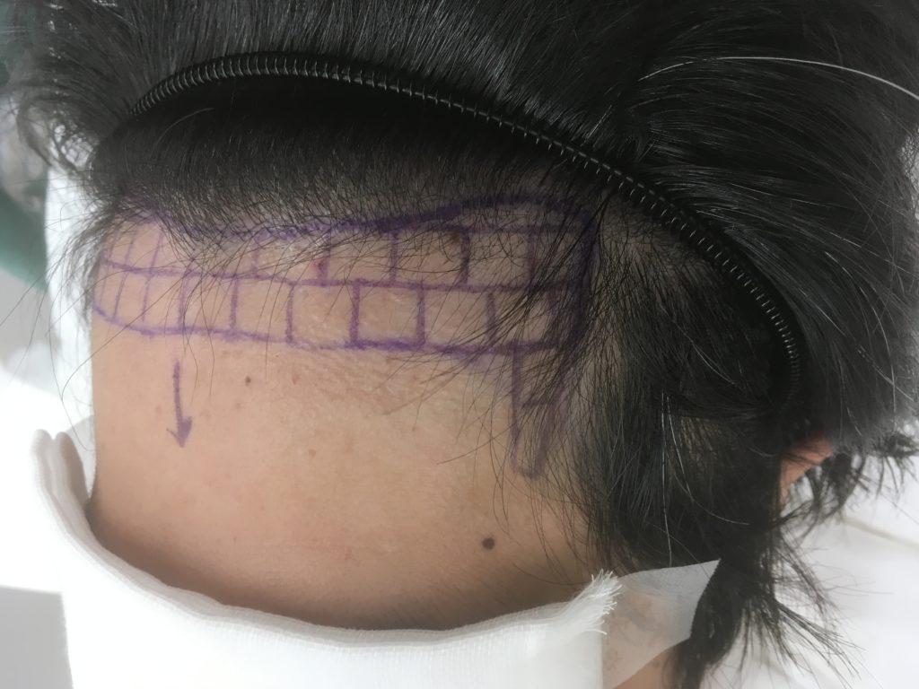 自毛植毛前のヘアデザイン左M字