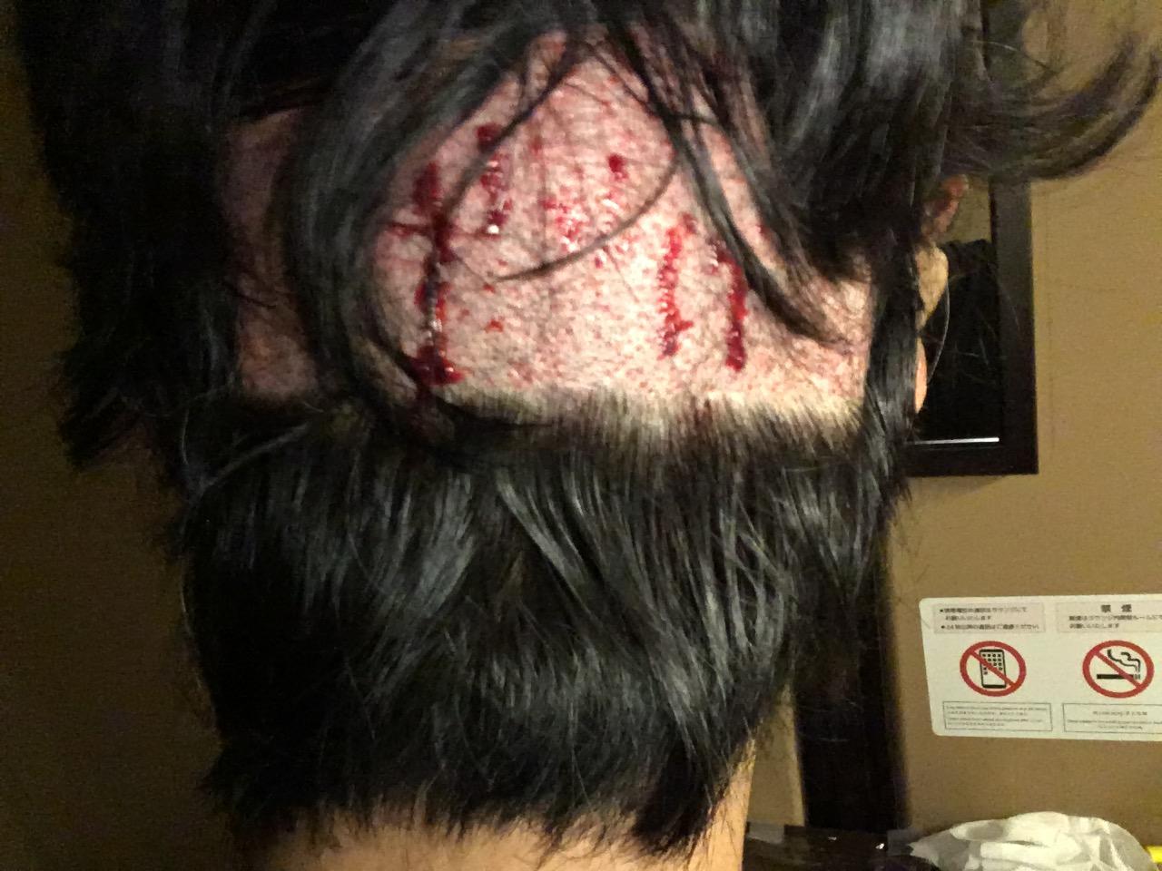 ルーチェクリニック自毛植毛後の翌日後頭部