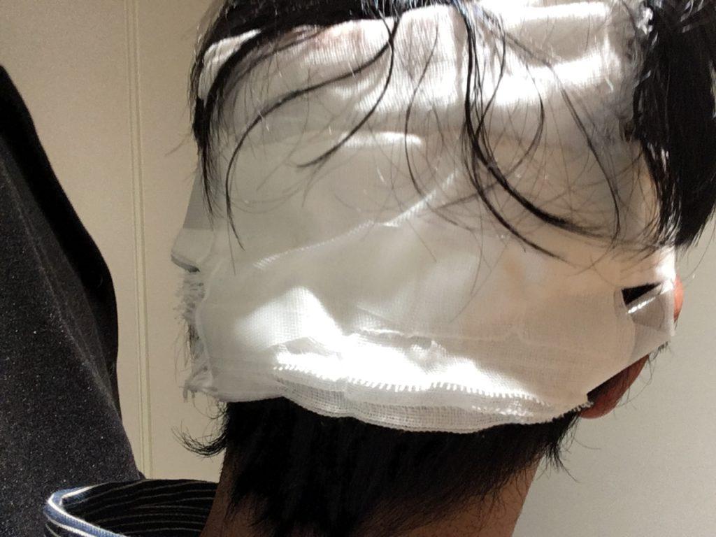 自毛植毛ドナー採取後の後頭部をガーゼで保護
