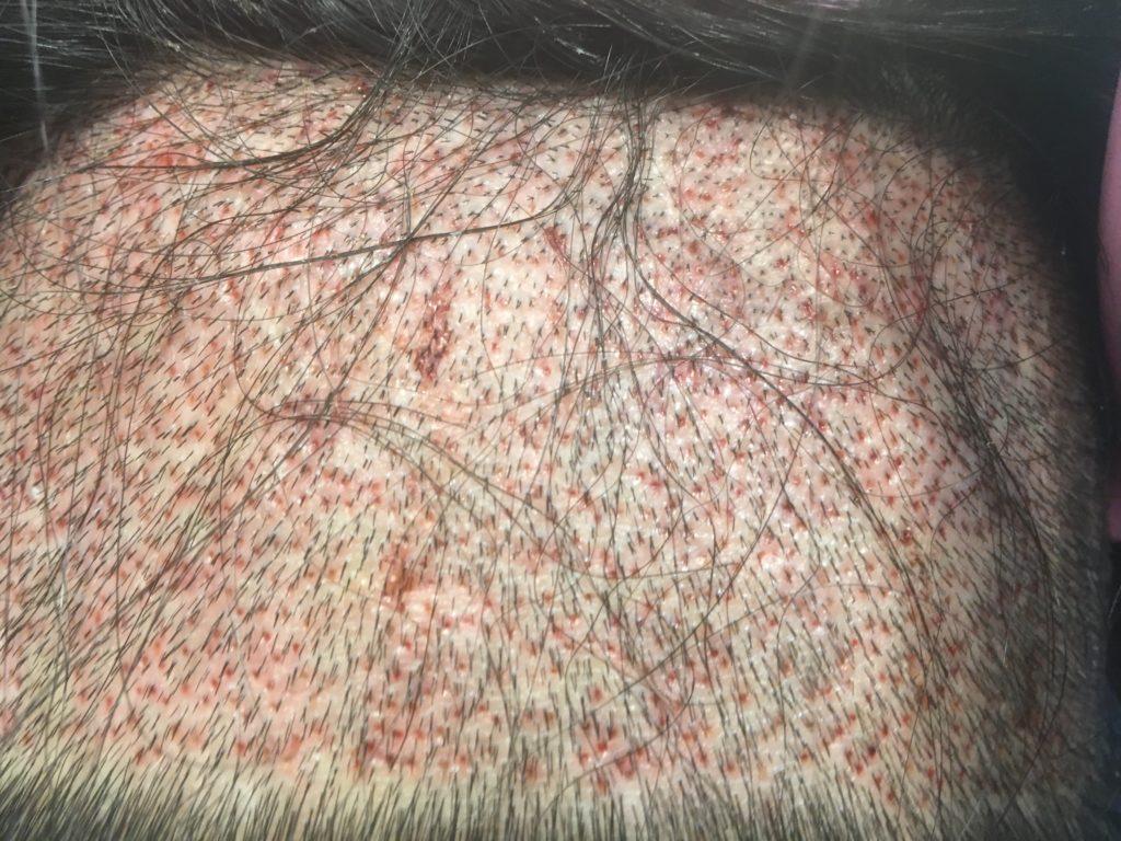 ルーチェクリニック植毛後2日目のドナー採取部後頭部拡大