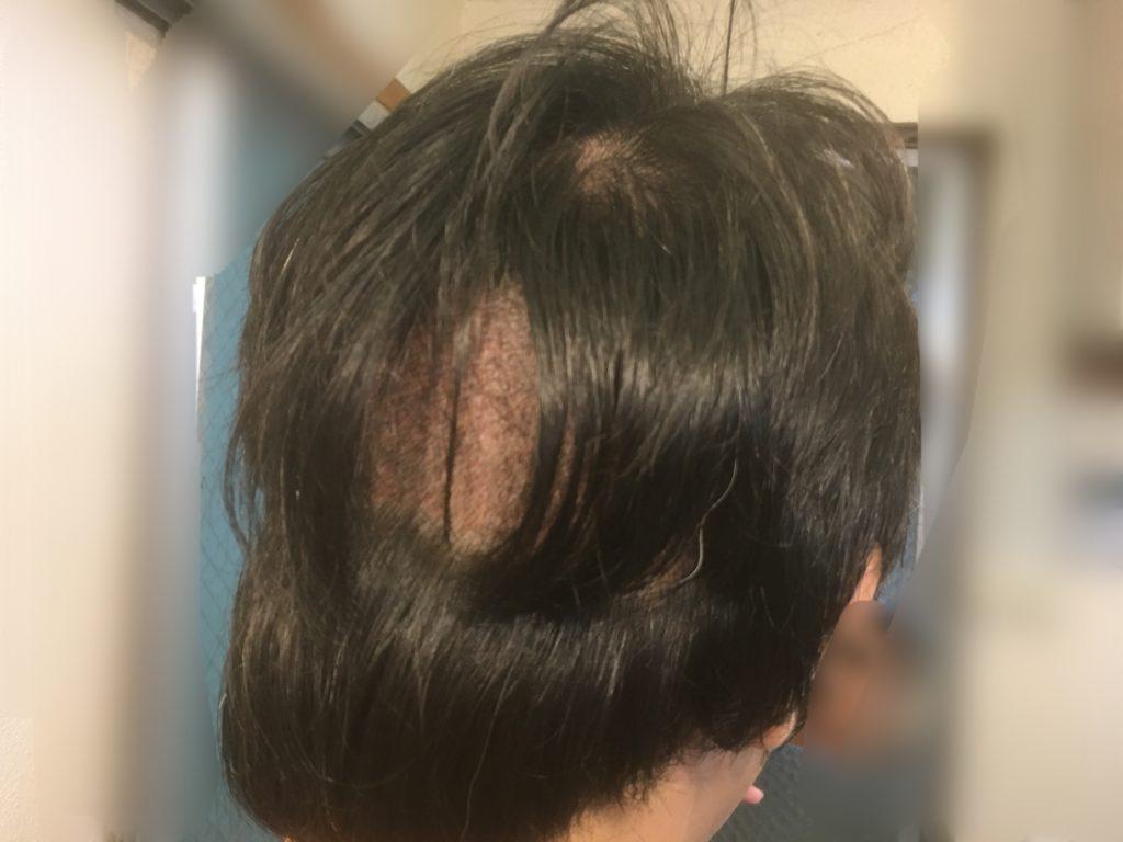 ルーチェクリニック植毛後3日目の刈り上げ部後頭部おろした右側
