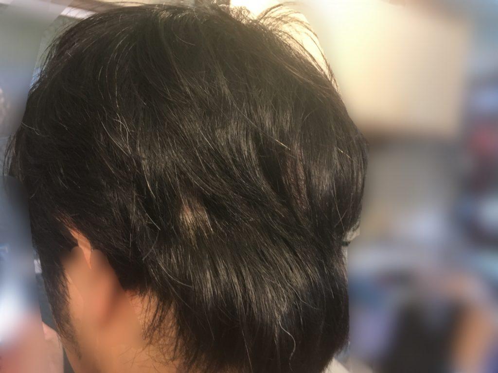 ルーチェクリニック植毛後3日目の刈り上げ部後頭部おろした左側