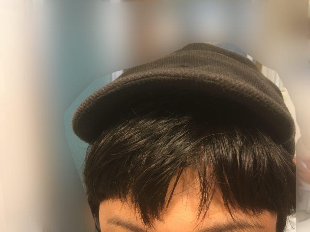 ルーチェクリニック植毛後3日目の帽子被った正面