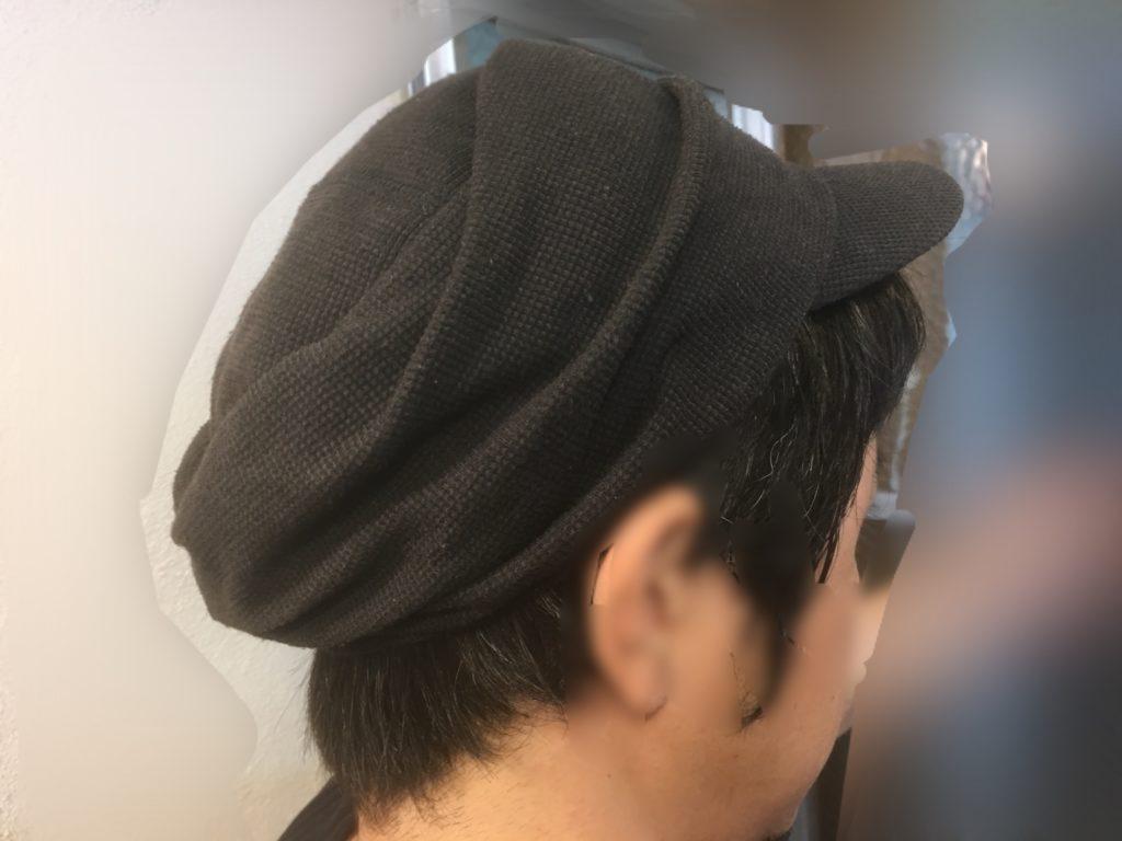 ルーチェクリニック植毛後3日目の帽子被った後頭部