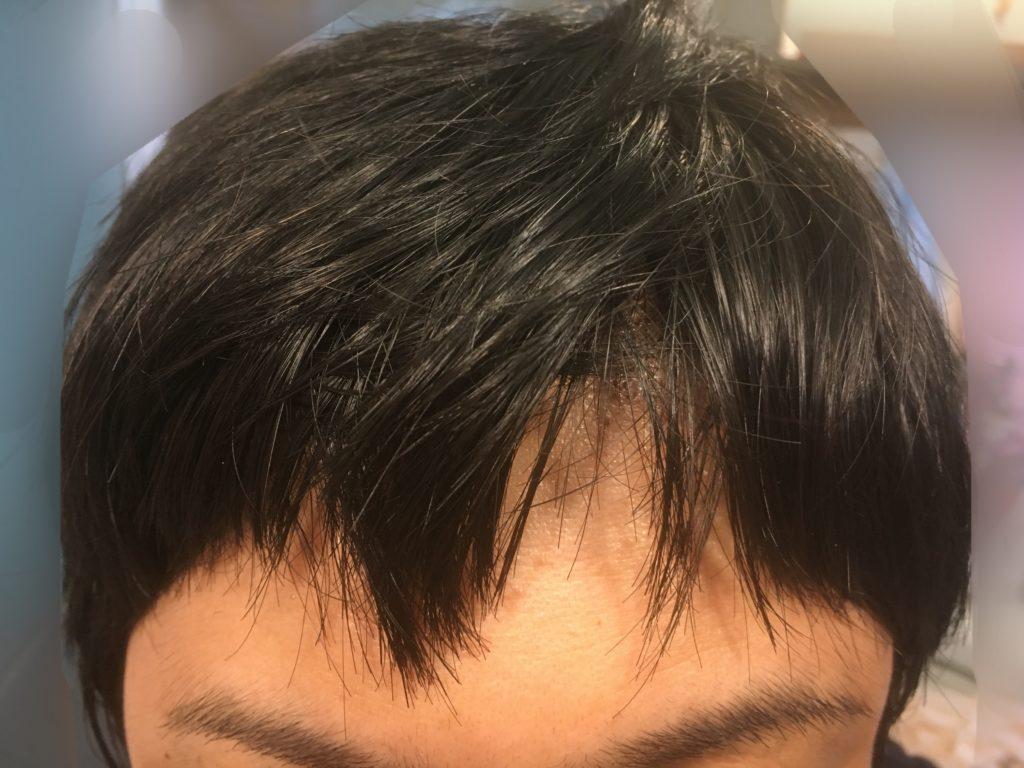 ルーチェクリニック植毛後3日目の前髪
