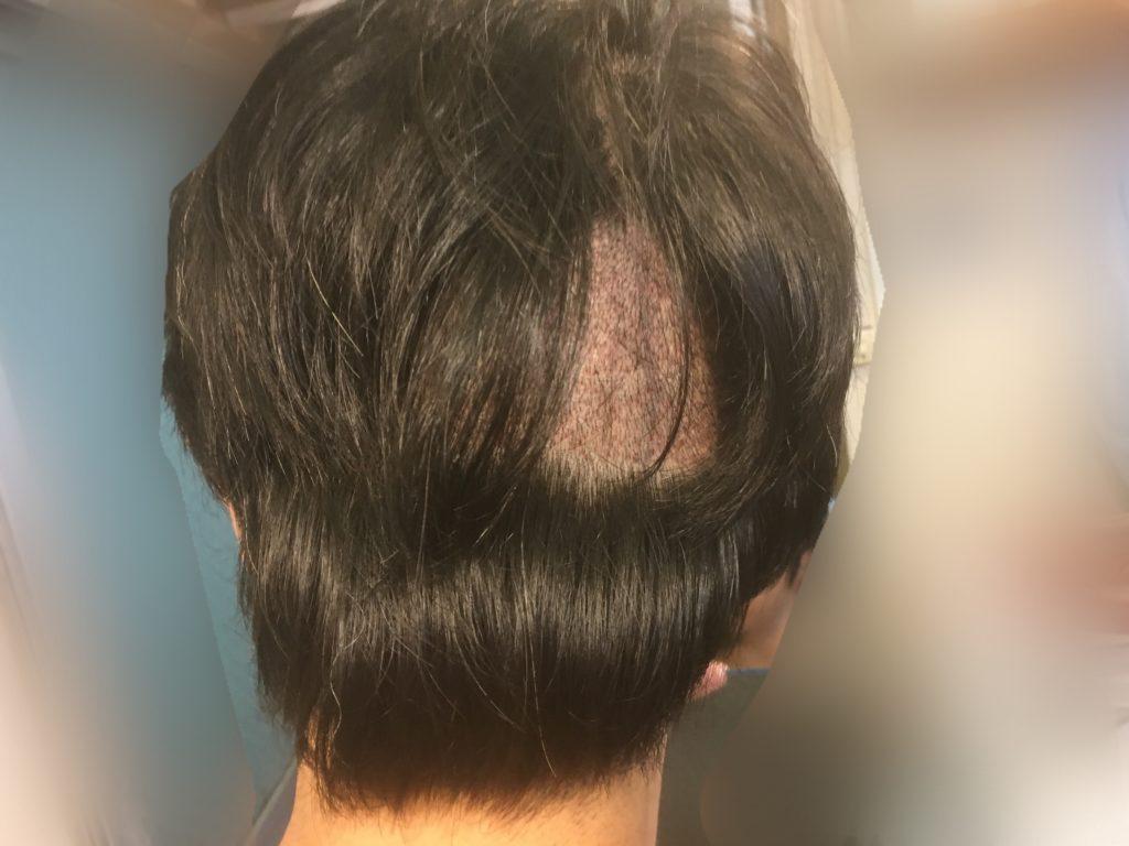 ルーチェクリニック植毛後3日目の刈り上げ部後頭部