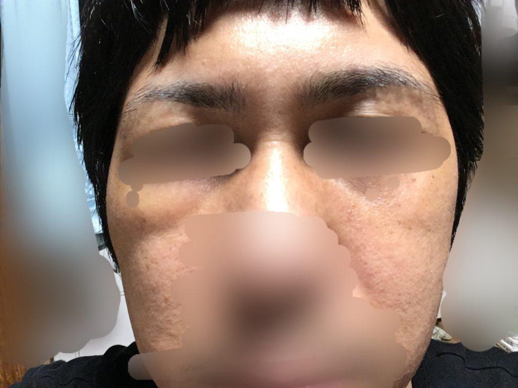 ルーチェクリニック植毛後4日目の目元の腫れ