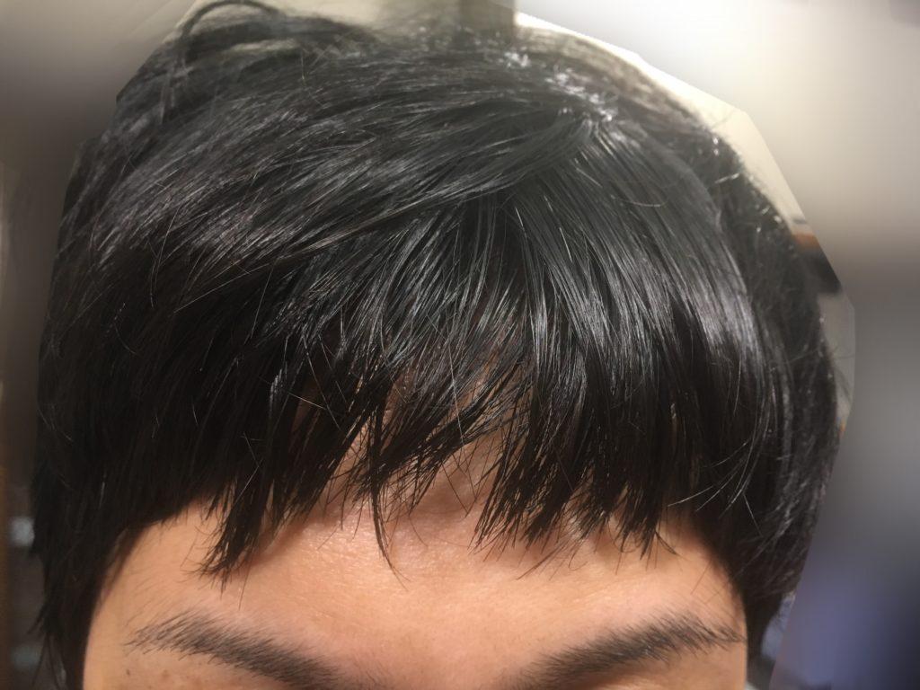 ルーチェクリニック植毛後4日目の移植部の前髪おろした正面