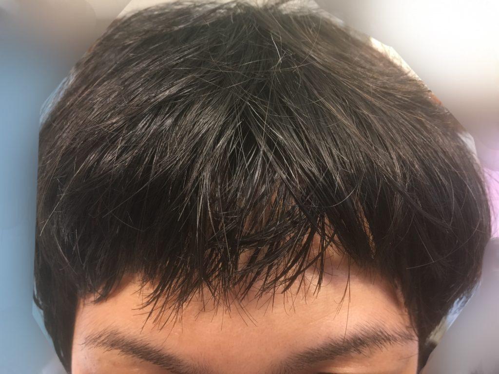 ルーチェクリニック植毛後5日目の移植部の前髪おろした正面