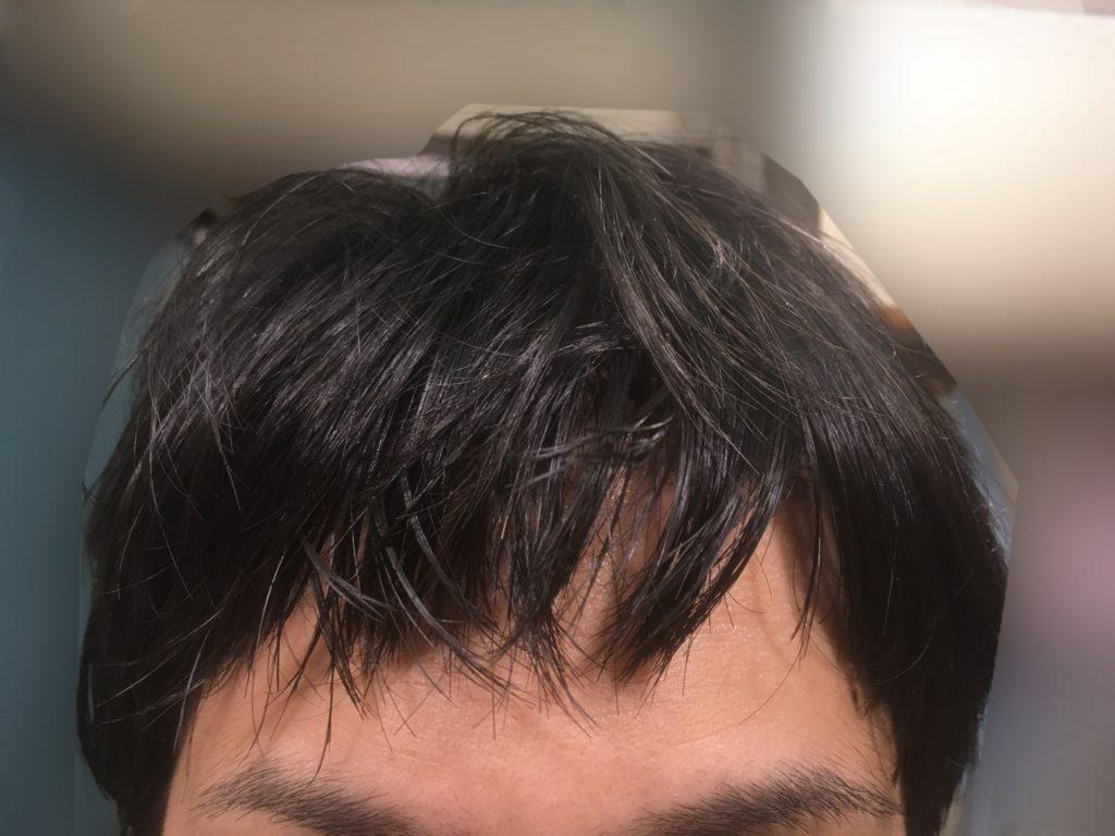 ルーチェクリニック植毛後6日目の髪をおろした前頭部
