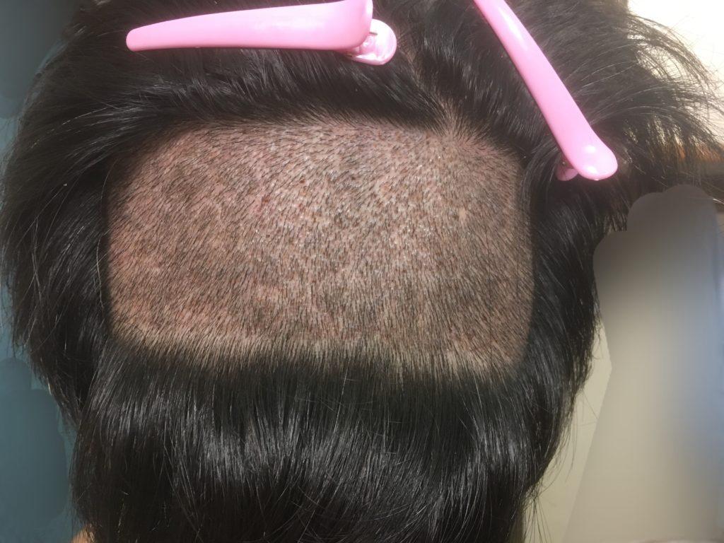 ルーチェクリニック植毛後6日目の刈り上げた後頭部2