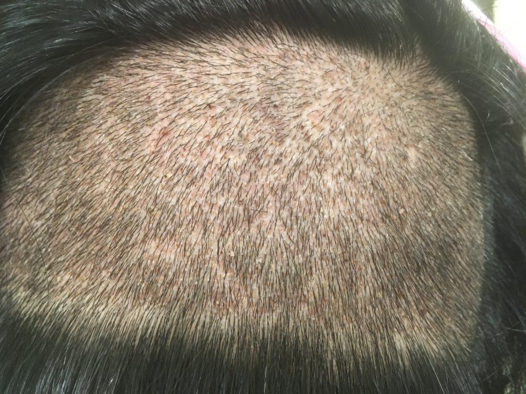 ルーチェクリニック植毛後7日目の刈り上げた後頭部拡大