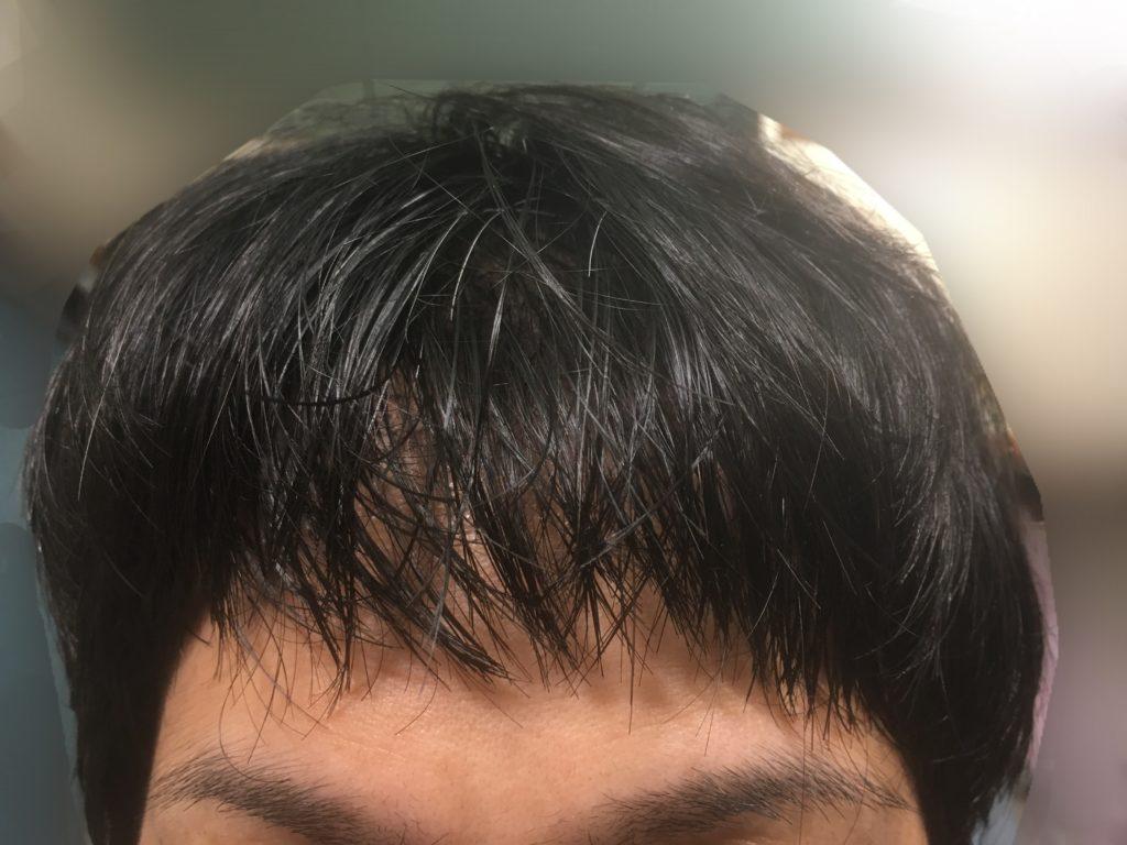 ルーチェクリニック植毛後7日目の髪をおろした前頭部