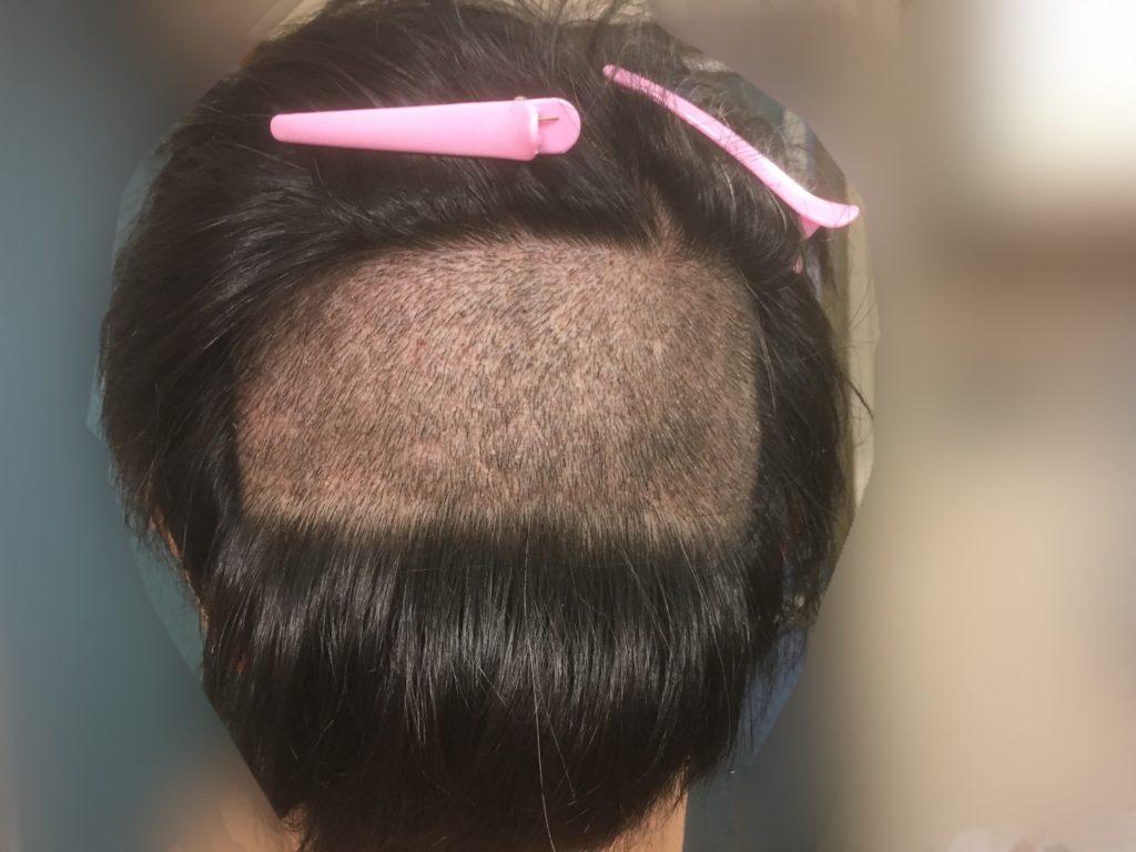 ルーチェクリニック植毛後7日目の刈り上げた後頭部