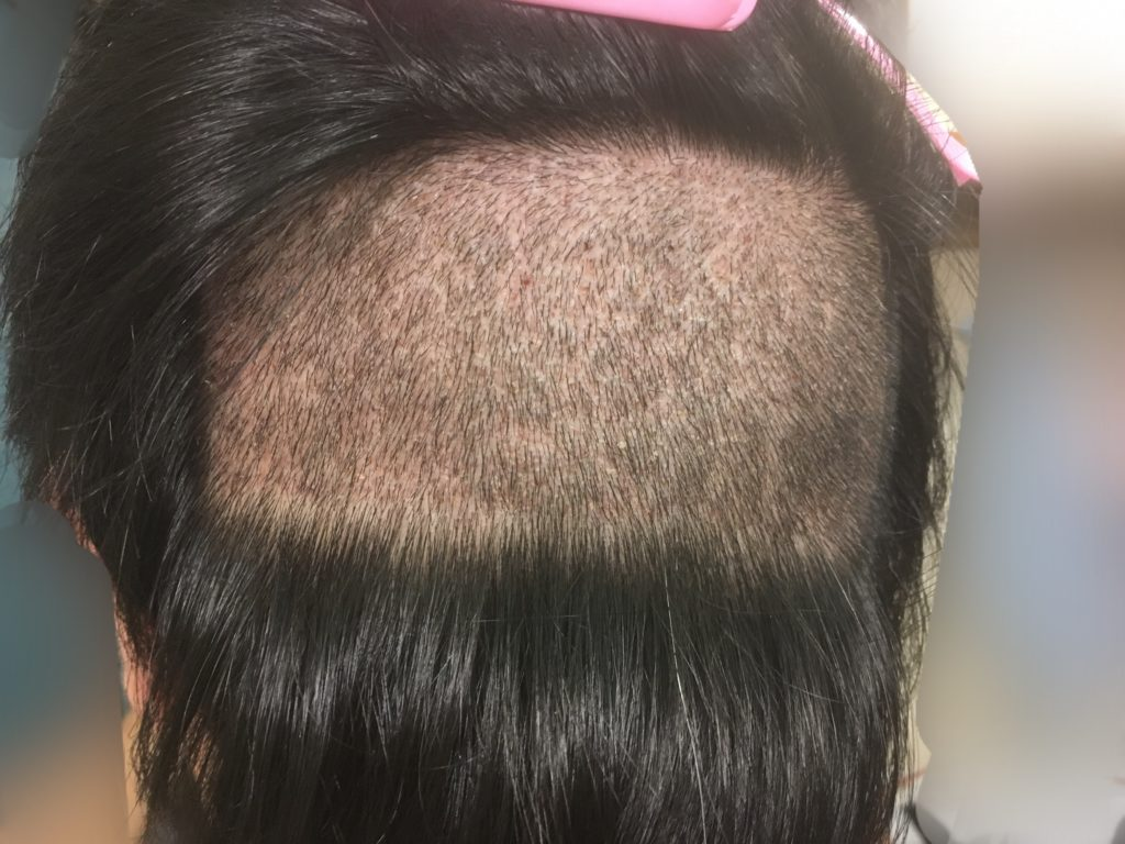 ルーチェクリニック植毛後7日目の刈り上げた後頭部2