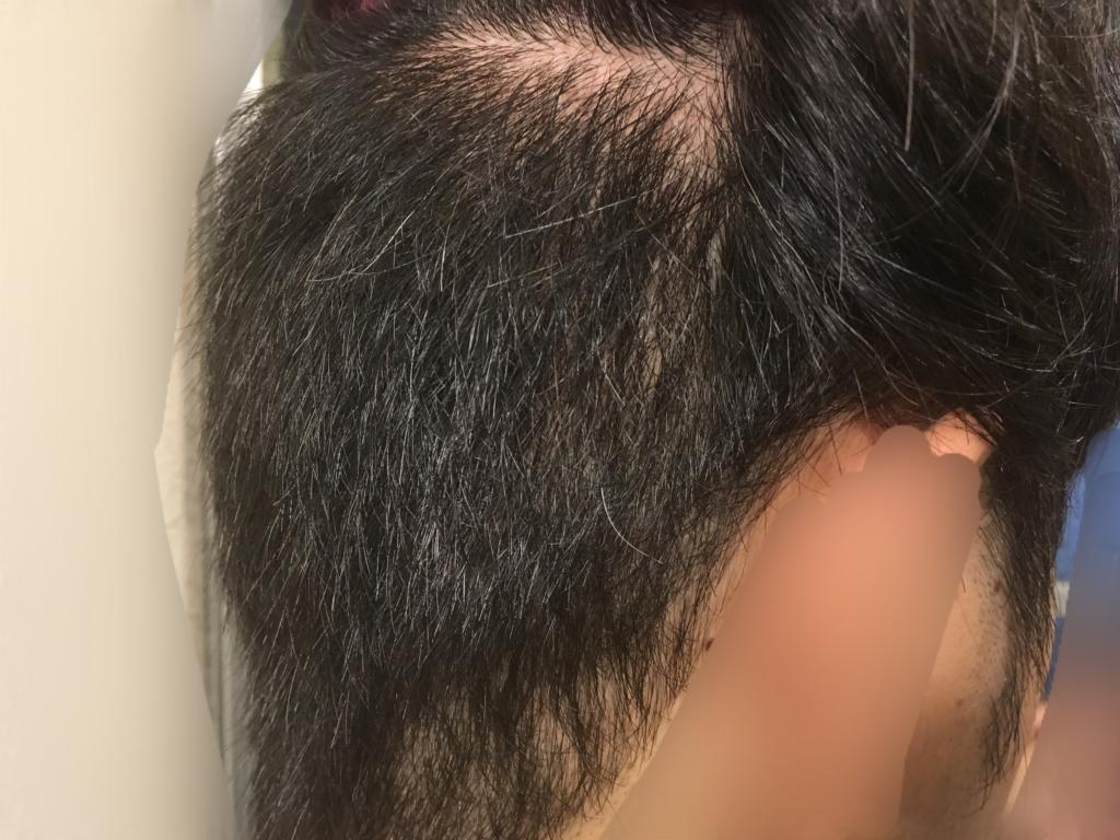 ルーチェクリニック植毛2ヶ月後の採取部3
