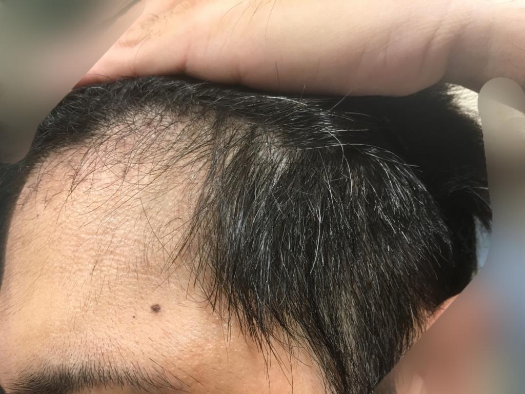 ルーチェクリニック植毛2ヶ月後の左M字