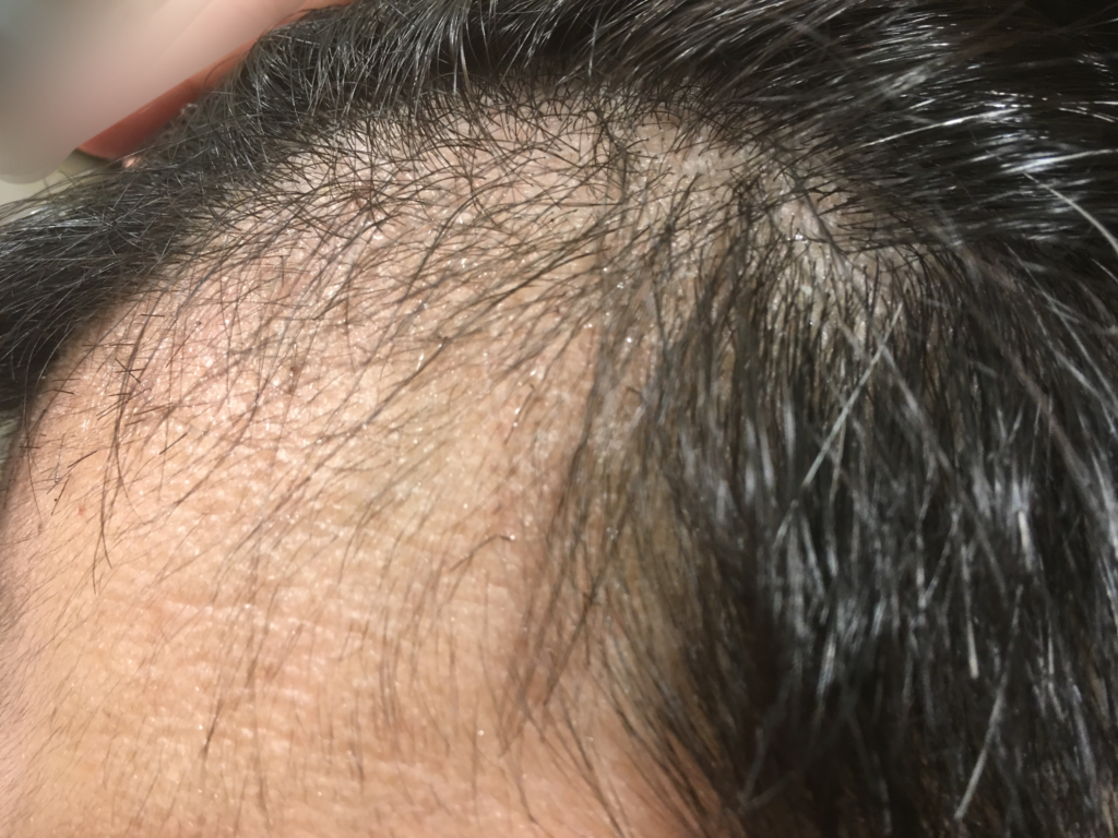 ルーチェクリニック植毛2ヶ月後の左M字拡大