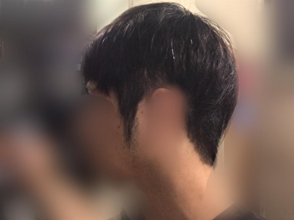 ルーチェクリニック植毛2ヶ月後の刈り上げ部おろした左向き
