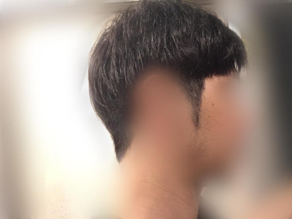 ルーチェクリニック植毛2ヶ月後の刈り上げ部おろした右向き
