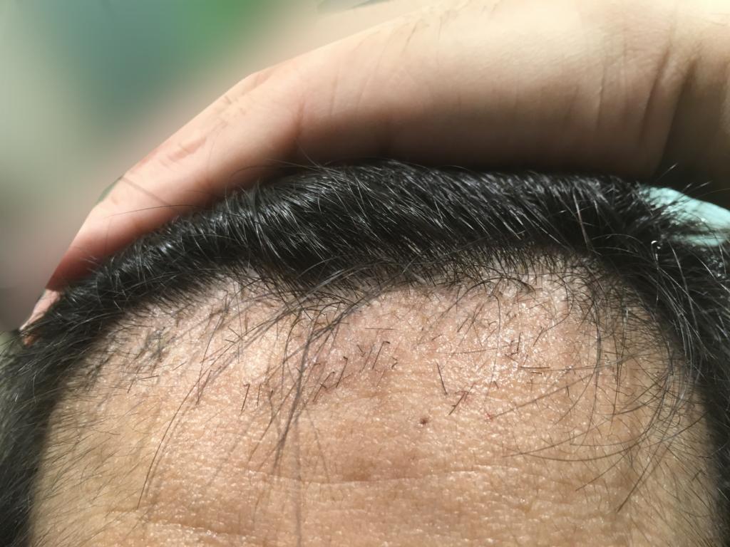 ルーチェクリニック植毛2ヶ月後の前頭部(生え際)拡大