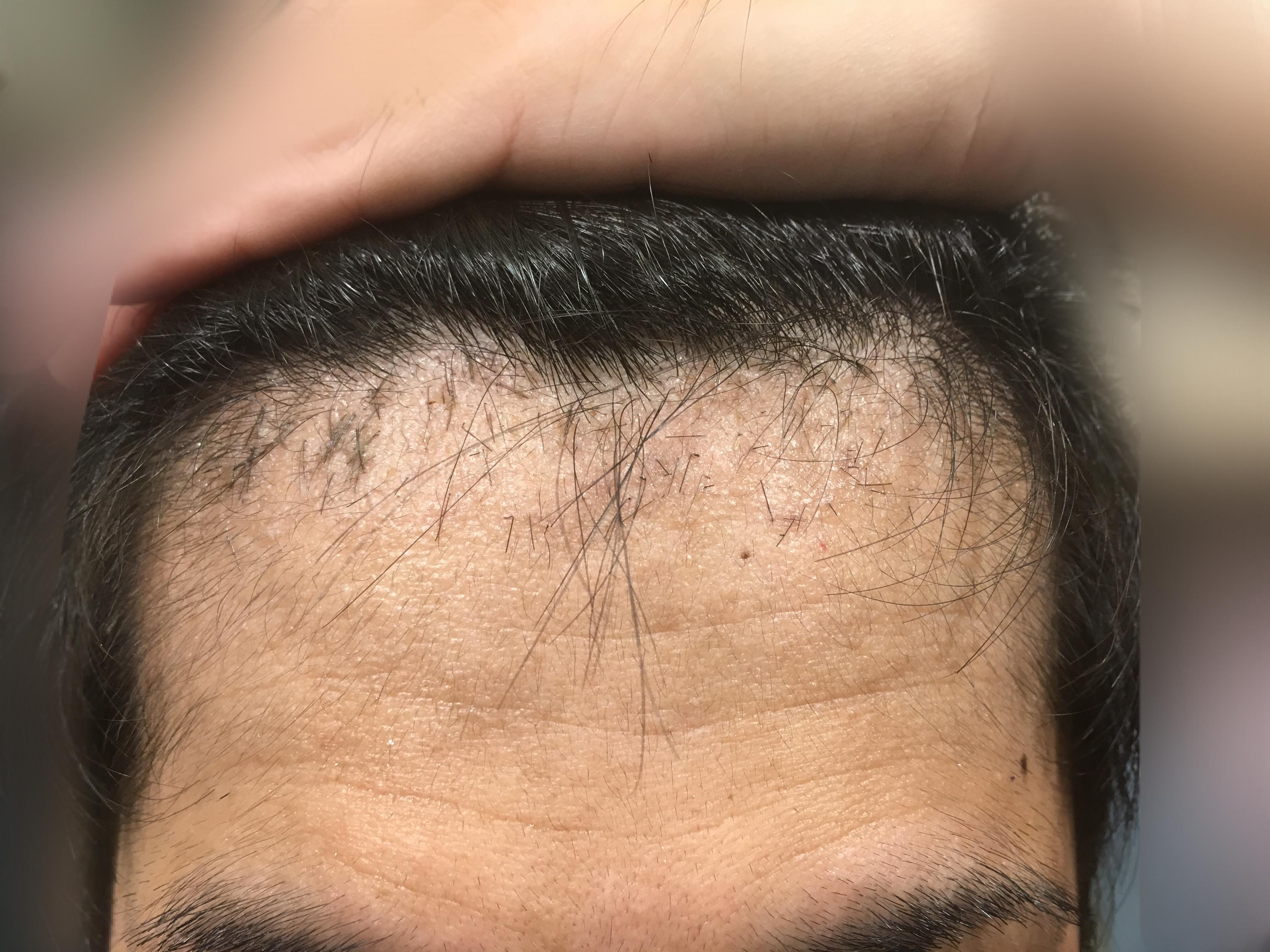 ルーチェクリニック植毛2ヶ月後の前頭部(生え際)