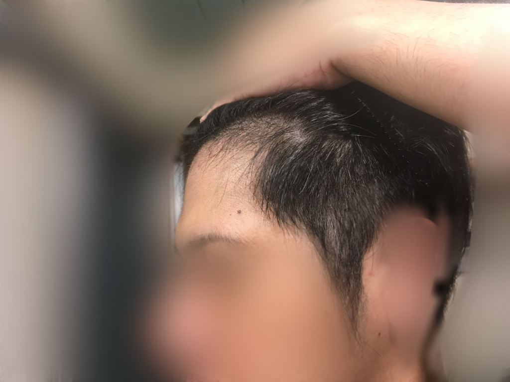 ルーチェクリニック植毛2ヶ月後の顔全体左向き