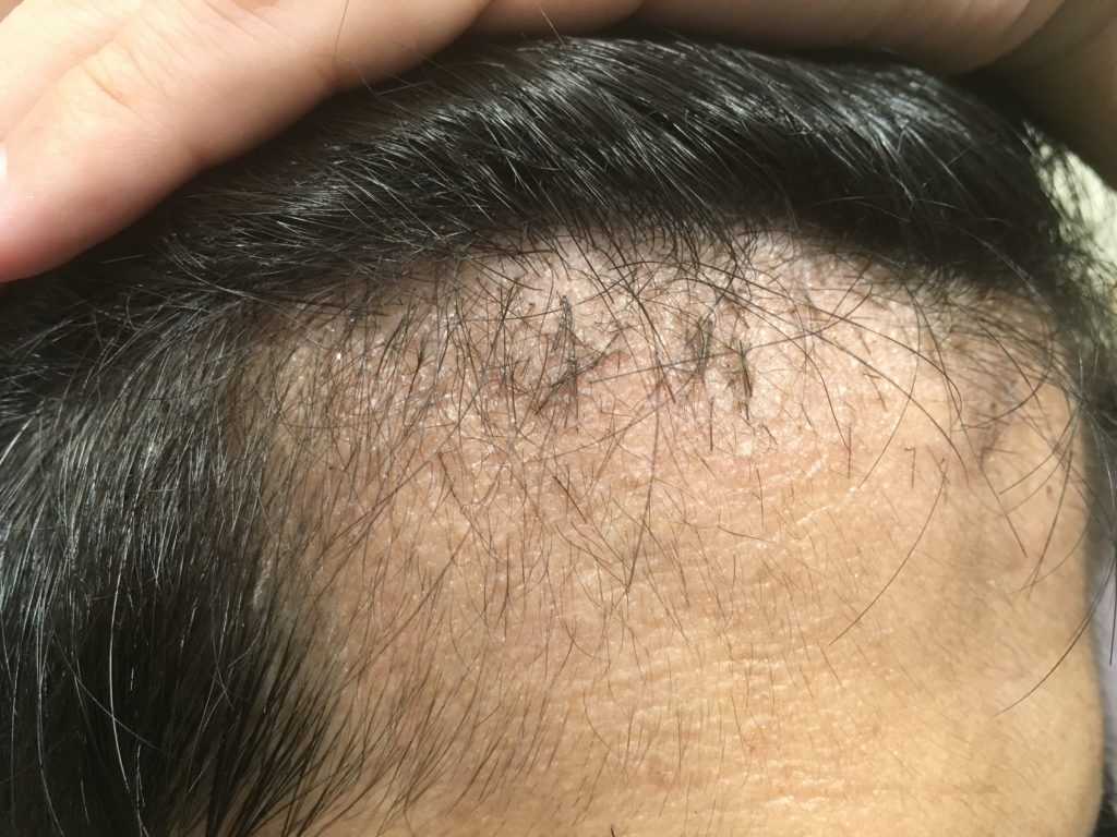 ルーチェクリニック植毛2ヶ月後の右M字拡大