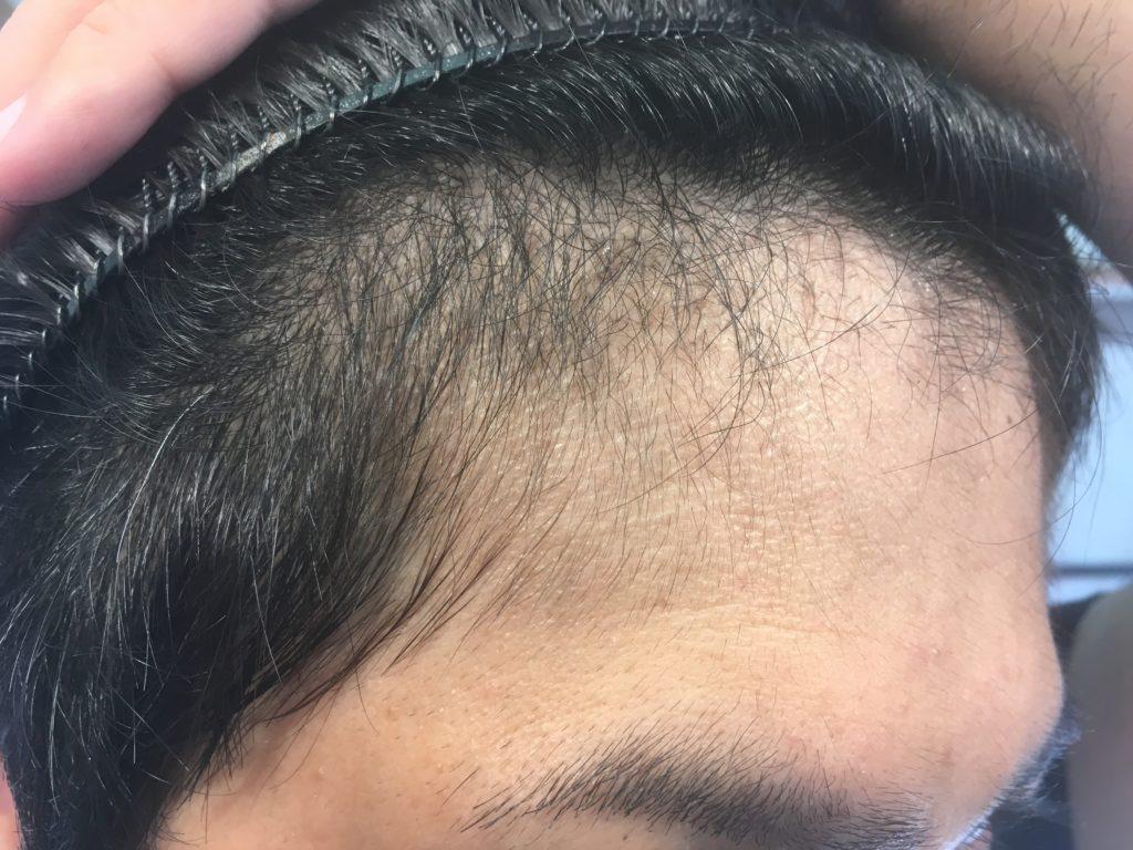 ルーチェクリニック植毛3ヶ月後の右M字