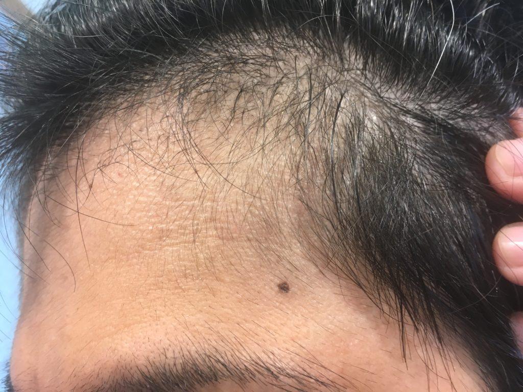 ルーチェクリニック植毛3ヶ月後の左M字2