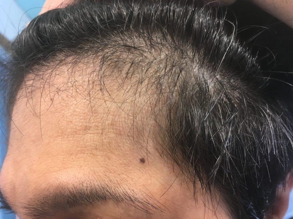 ルーチェクリニック植毛3ヶ月後の左M字