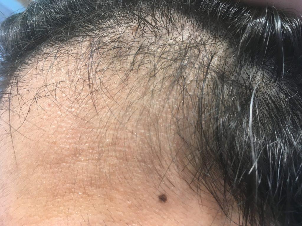 ルーチェクリニック植毛3ヶ月後の左M字拡大