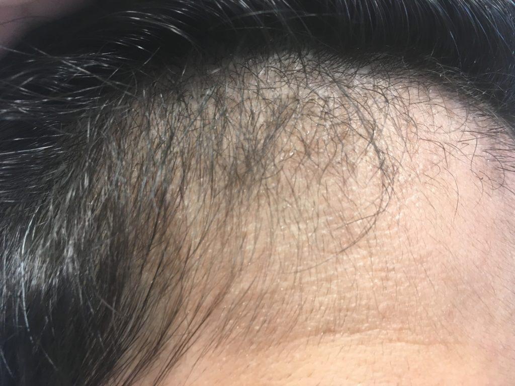 ルーチェクリニック植毛3ヶ月後の右M字2