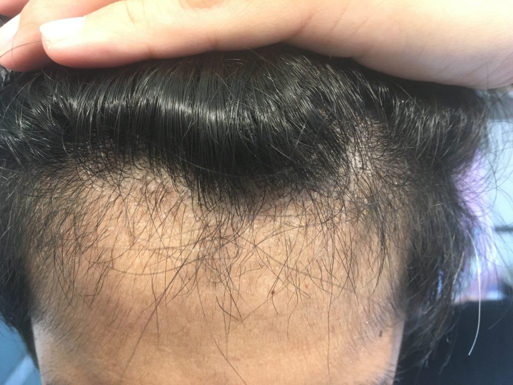 ルーチェクリニック植毛3ヶ月後の前頭部(生え際)2