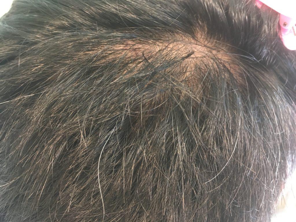 ルーチェクリニック植毛3ヶ月後の採取部3