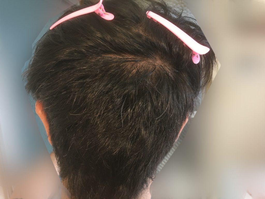 ルーチェクリニック植毛3ヶ月後の採取部